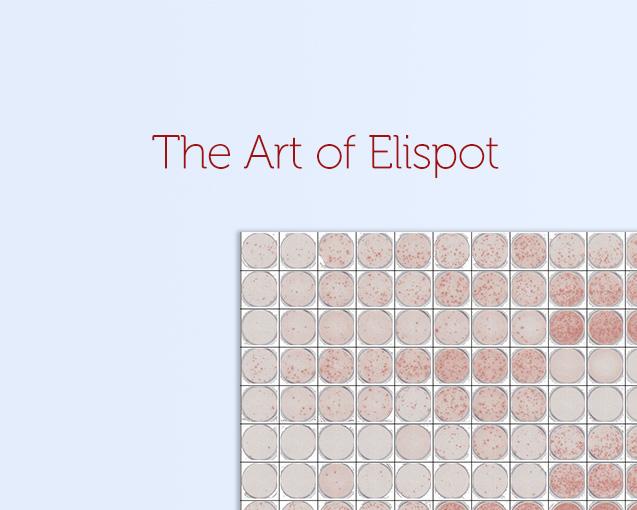 zellnet-elispot-reader-start-plates